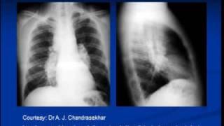 Chest X-ray  --interpretation  -Sarcoidosis