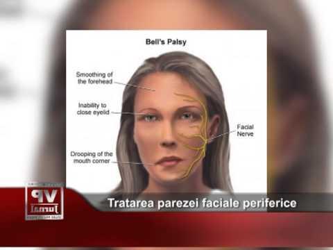 Tratarea parezei faciale periferice