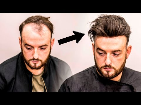 Mens Hair Loss Treatment   Hairstyle Transformation - Does it Work?