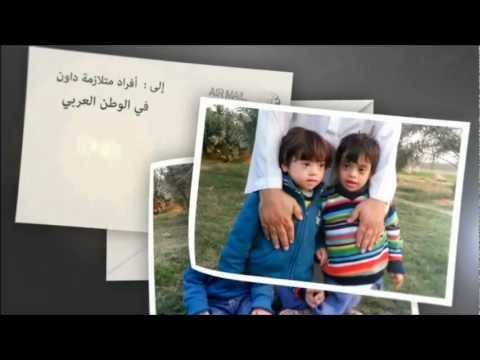 حملة اليوم العالمي لمتلازمة داون 2013