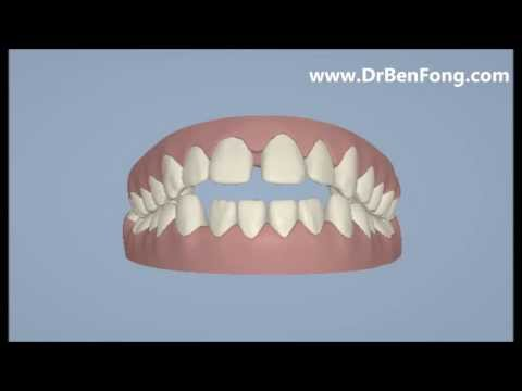 Invisalign Results for Feisal A.| Before & After | www.invisalignresults.ca