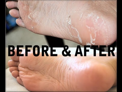 Baby foot - You can buy Baby Foot here:http://amzn.to/13JRUfR Caution: I show you nasty peeling feet before and after footage, LOL! Check out my blog post on more tips o...