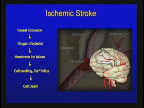 Gefäßerkrankungen des zentralen Nervensystems