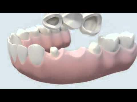 Le Bridge tout ceramique dentaire