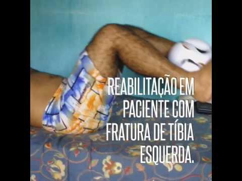 Fisioterapia em paciente com fratura de tíbia, pós operatório, Timbo de Jacaraú, jacarau,