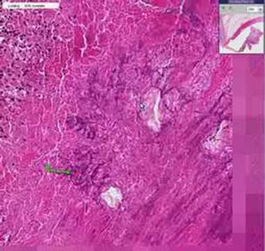 Histopathology Heart, aortic valve –Bacterial endocarditis