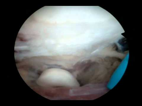 Arthroscopic Excision Of Elbow Joint Loose Part