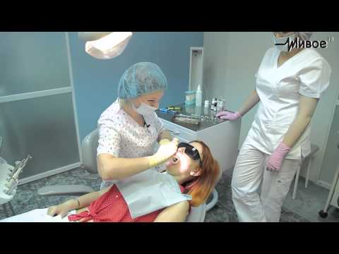 Телеполиклиника. Реставрация зуба