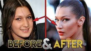 Bella Hadid | Before and After Transformations ( Plastic Surgery Rumors, Make Up, Fitness & More )