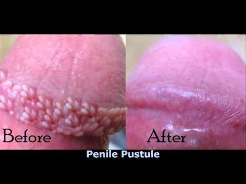 Ppp disease treatment
