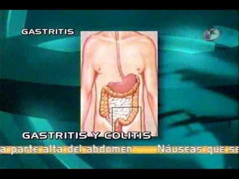 que es la gastritis aguda