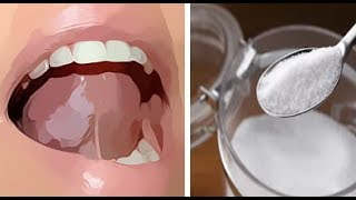PUT SALT SUGAR MIXTURE UNDER YOUR TONGUE BEFORE YOU GO TO SLEEP ..WHAT HAPPENS IS AMAZING
