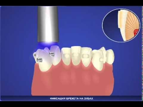 Современные методы восстановления зубов