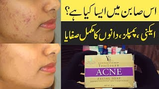 Acne & Pimples Simple Solutions as Treatment Urdu Hindi, in this video I gonna show you simple solutions to get rid of acne and pimples with your daily use products, beauty soap, beauty creams, face wash & cleanser. Everybody uses these items in daily routine. You have to just exchange with those items which are made for beauty and acne prone skin specifically. I did the review a bunch of beauty products that recommended for beauty and acne prone skin.Hope you will enjoy..._________________________________________________________More Reviews are here:An amazing review for acne and pimples:https://youtu.be/-ng56edzFAIGOLDEN PERAR BEAUTY CREAM REVIEW:https://www.youtube.com/watch?v=ffPldxsoedEFAIR & LOVELY CREAM REVIEW:https://www.youtube.com/watch?v=dNhYPNVYSgYTIBET SNOW CREAM REVIEW:https://www.youtube.com/watch?v=WXgi4U6XL3ABOY'S BEAUTY TIPS & FACE WASHES REVIEWS:https://www.youtube.com/watch?v=fqDrspV-NcIHAND & FEET WHITENING CREAMS REVIEW:https://www.youtube.com/watch?v=L_YM2SrkWssRIVAJ SUN BLOCK REVIEW:https://www.youtube.com/watch?v=F6Sx30AQHhUFACIAL KITS REVIEW:https://www.youtube.com/watch?v=VyEU-H3xlVIALOE VERA GEL REVIEW:https://www.youtube.com/watch?v=3D1WTZFCBDw____________________________________________________________▶ Also watch Bleach Creams & BB Cream's Review:Bleach Creamhttps://youtu.be/N_Y5elTCcs8BB Creamhttps://youtu.be/of5AZh33bpk_____________________________________________________________Reduce Body Weight 10 kg in 10 Days:https://goo.gl/4sK2km_____________________________________________________________▶ Remove Dark Circles:https://www.youtube.com/watch?v=jGTreuNrfDQ▶ Remove Sun Tanning:https://www.youtube.com/watch?v=Oha3hBweyyQ▶ Skin Whitening and Sun Block Cream:https://www.youtube.com/watch?v=q5EbUww5C_0_____________________________________________________________I'm ♥ Memoona Muslima ♥ and a student of naturopathic, home economics, cookery and other aspects of household management.★ Naturopathy or naturopathic medicine is a form of alte