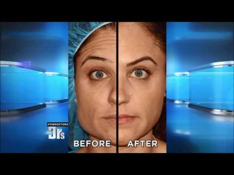 Dr Groff Treats Frown & Forehead Wrinkles with ThermiRase on The Doctors