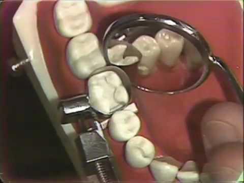 Amalgam für Hygieniker