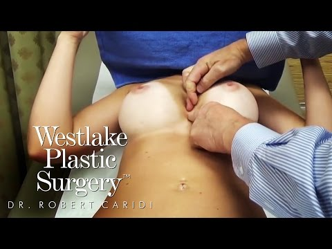 What It Looks Like When Female Breasts Touch In The Middle - Symmastia - Westlake Plastic Surgery