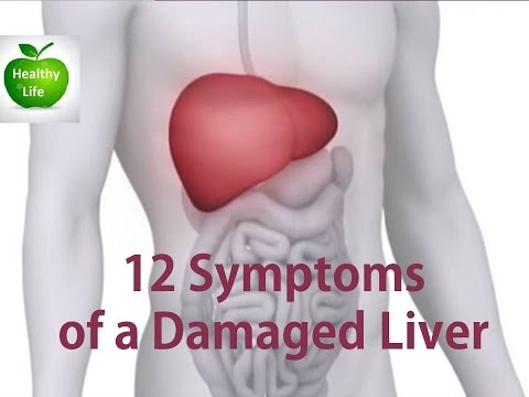 12 Symptoms Of A Damaged Liver