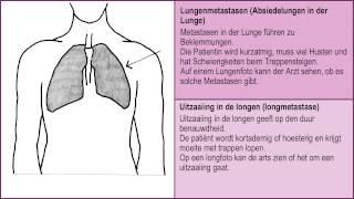 uitzaaiingen na borstkanker