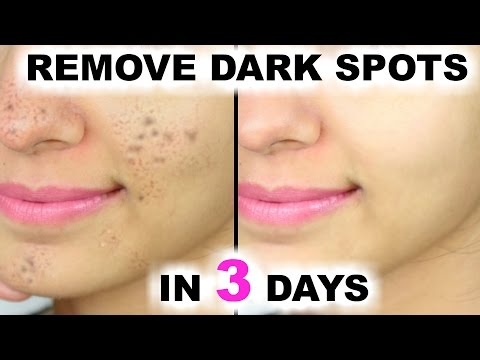 In 3 DAYS - Remove DARK SPOTS, BLACK SPOTS & ACNE SCARS | Anaysa