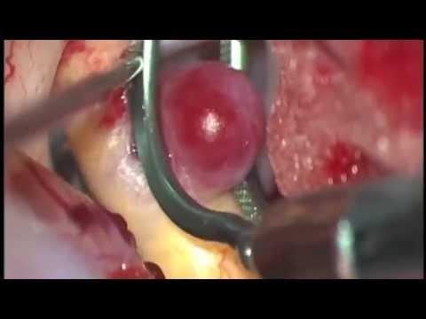 Операция. Клипирование неразорвавшейся аневризмы внутренней сонной артерии