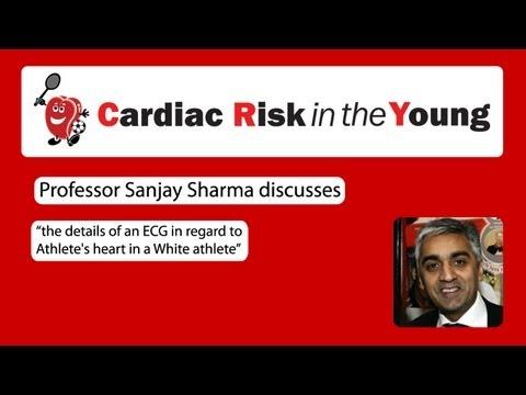 ECG 1: Athlete's heart in a White athlete