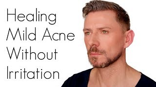 HOW TO TREAT ACNE WITHOUT IRRITATING YOUR SKIN by Wayne Goss