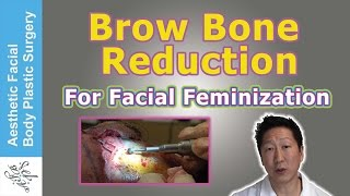 Video BROW BONE REDUCTION HAIRLINE LOWERING BROW LIFT FOR FACIAL FEMINIZATION &  LIVE SURGICAL VIDEO DEMO MP3, 3GP, MP4, WEBM, AVI, FLV November 2018