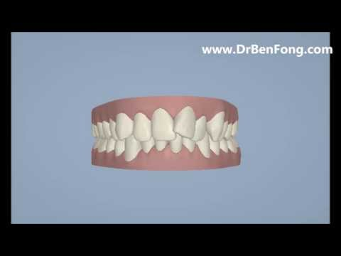 Invisalign Results for Zhenzhong G.| Before & After | www.invisalignresults.ca