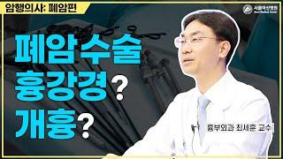 폐암 수술, 흉강경? 개흉? 미리보기