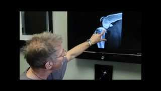TPLO surgery discussed by Michael Bauer DVM, DACVS