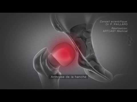 comment renforcer son cartilage