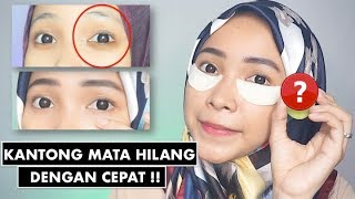 Video TIPS MENGHILANGKAN KANTONG MATA, MASKER BIKIN SENDIRI GAMPANG | DIY EYE MASK DARK CIRCLE MP3, 3GP, MP4, WEBM, AVI, FLV Juli 2018