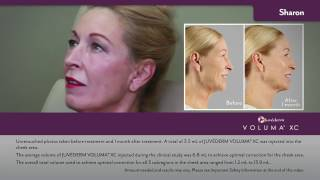 Juvederm Face Lift Videos