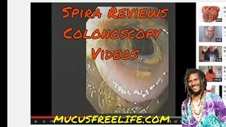 Video Spira Reviews Colonoscopy Videos: Mucusless Diet is the REAL Colon Cleanse Diet MP3, 3GP, MP4, WEBM, AVI, FLV November 2018