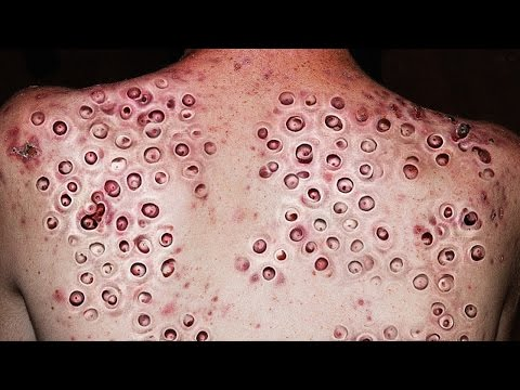 Trypophobia, Blackheads & Zip Popping!  Why Do We Love It?