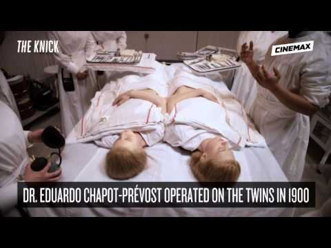 The Knick Season 2 - Factoid Conjoined Twins (Cinemax)