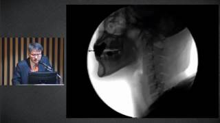 2017년 제 2회 서울아산병원 중환자외과 심포지엄  : How to Manage Dysphagia Patients 미리보기