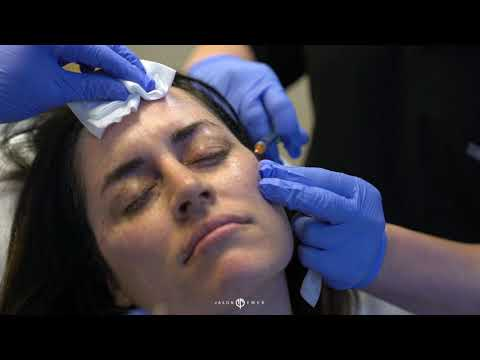 Facial Sculpting