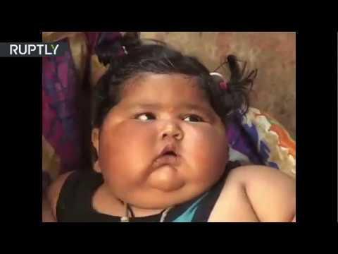 Una bebé India de 8 meses que pesa 17 kilos