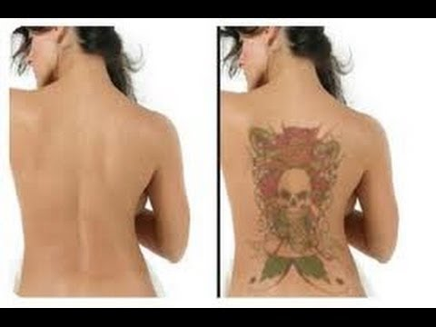 Tattoo removal boston ma 7 things you should know before for How much to get a tattoo removed