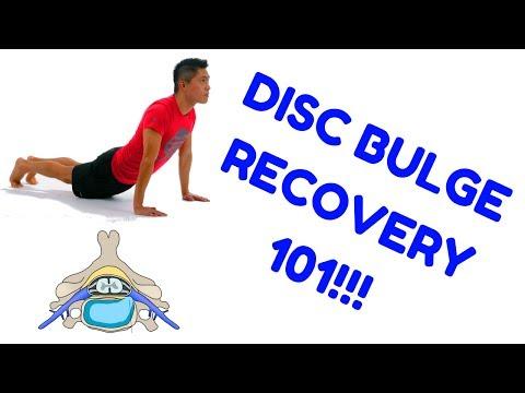 Disc Bulge Recovery (HEALING A HERNIATED DISC)