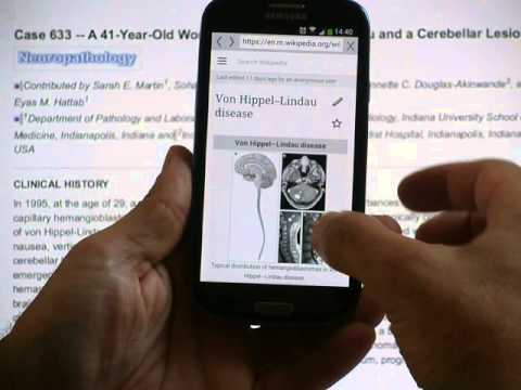Video of Medical Search and Dictionary