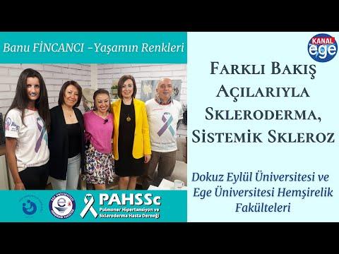 Kanal Ege Banu Fincancı Yaşamın Renkleri 30 04 2019 Farklı Bakış Açılarıyla Skleroderma