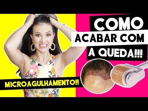 ADEUS QUEDA CAPILAR! A INCRÍVEL TÉCNICA DO MICROAGULHAMENTO!  por Julia Doorman
