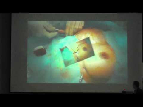 Доклад хирурга клиники «Инновация» А. Петаха. «Аутолипо-трансплантация в реконструктивной хирургии молочной железы». Украина.