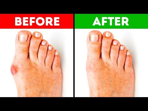 5 Effective Ways to Get Rid of Bunions