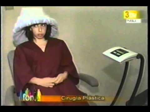 Televisa Puebla - Clínica Dermatológica de Puebla® - La Fotodepilación