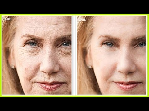 Revitol Phytoceramides – The Best Wrinkle Cream