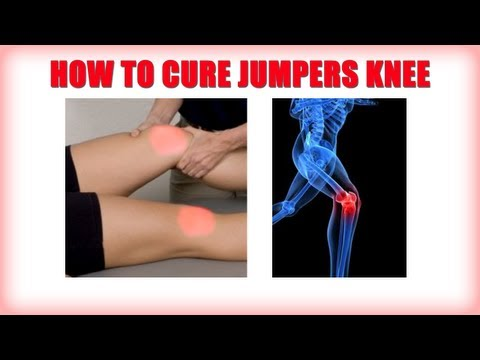 how to relieve jumper's knee